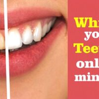 Whiten your teeth in only two minutes