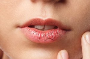 Get rid of dry cracked lips,Home Remedies for Chapped lips