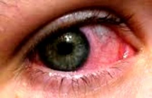 Get Rid of Conjunctivitis Problem with These Home Remedies