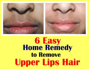 Remove Upper Lips Hair With these 6 Easy Home Remedy