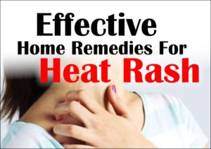 Effective Home Remedies For Prickly Heat or Heat Rash
