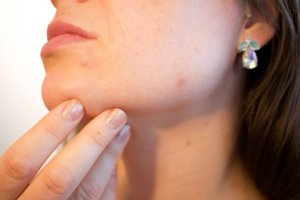 These 4 Mistakes of your Daily Routine make the Skin Lifeless