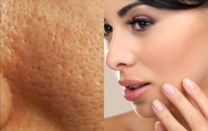 Get Rid Of Large Open Pores with these 7 Home Remedies