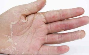 Get Relief from Hand Skin Peeling with these 5 Easy Home Tips