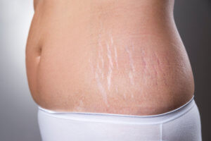 5 Effective Ways to Get Rid of Stretch Marks