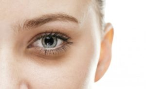 8 tips to Remove the Problem of Dark Circles