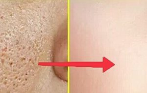 How to erase the pits from the face