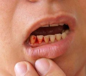 Get Rid of the Problem of Bleeding Gums
